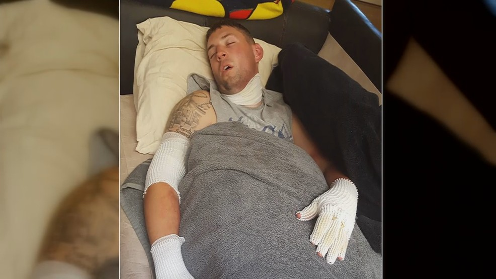 Spanaway Man Suing After Suffering Major Burns From Propane Gardening Torch Komo